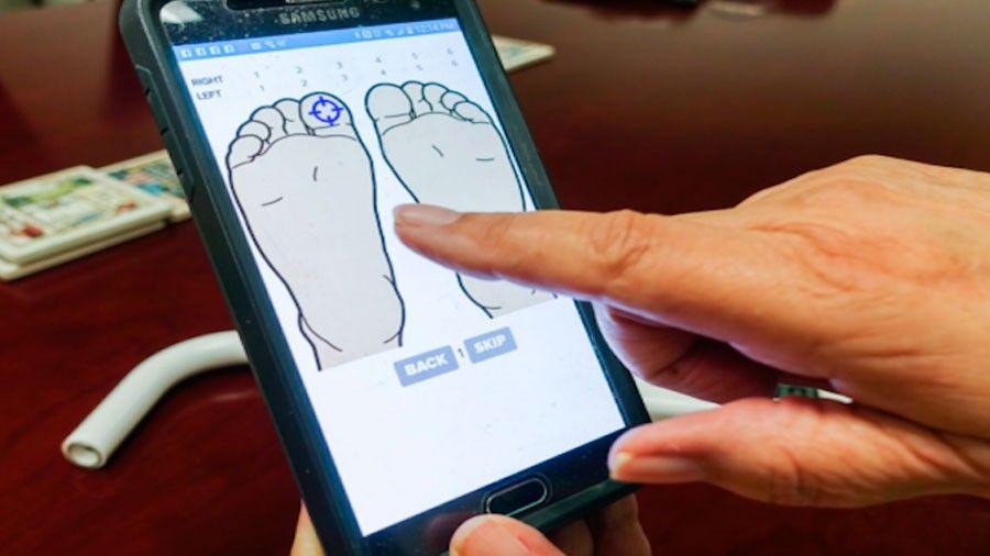 Diseñan un sensor de pie diabético para medición en casa