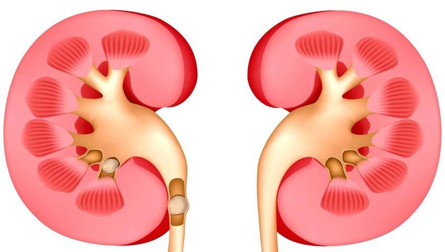 Los pacientes con diabetes pueden prevenir e incluso detener la enfermedad renal