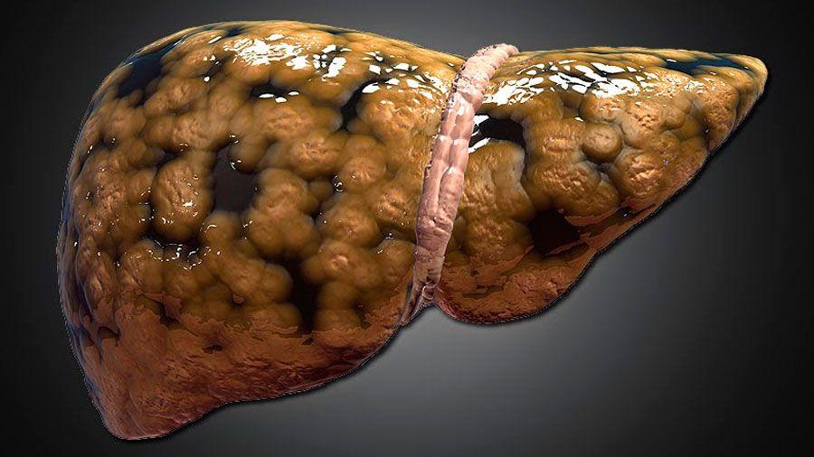 ¿Qué es hígado graso o esteatosis hepática y porqué la diabetes tipo 2 es un factor de riesgo?