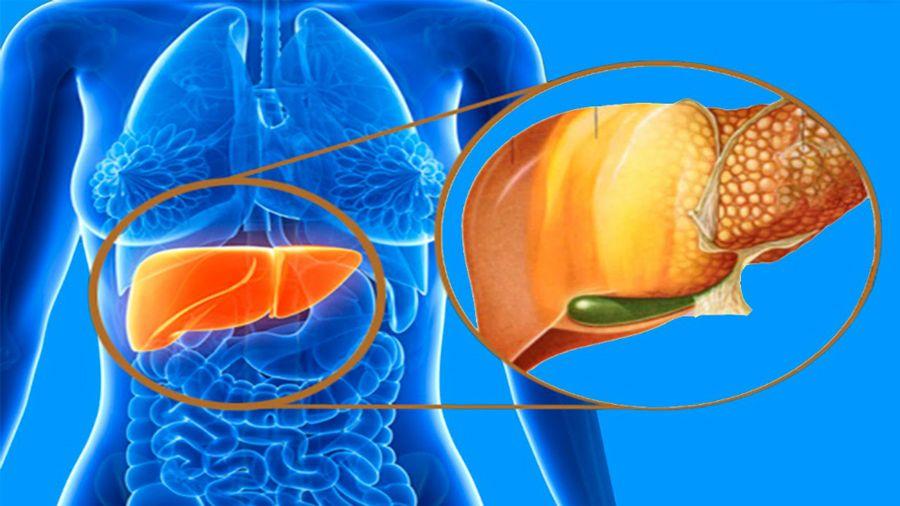 Daños en el hígado por mal uso del paracetamol